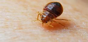 Bedbug ısırıkları fotoğrafları